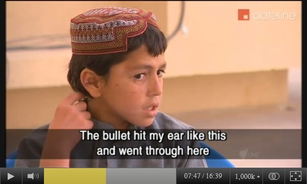 Screen-captured image of Panjwai district boy named Sediqullah pointing to the bullet hole he received in the ear on March 11, 2012, in an interview with SBS-TV in late March, 2012